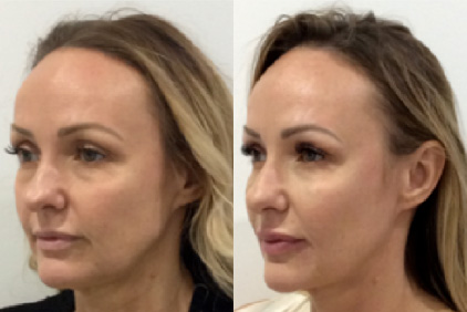 Treatments dr simone doreian jowls and softening of the jaw contour can be achieved both by ha gel fillers and botulinum toxin to the platysma muscle ccuart Image collections